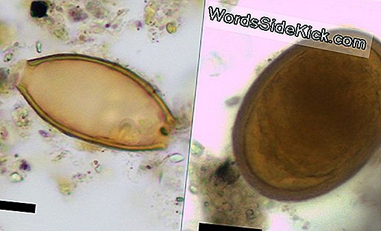 Poop Proof: Ancient Greeks Lijd Aan Gut Parasites