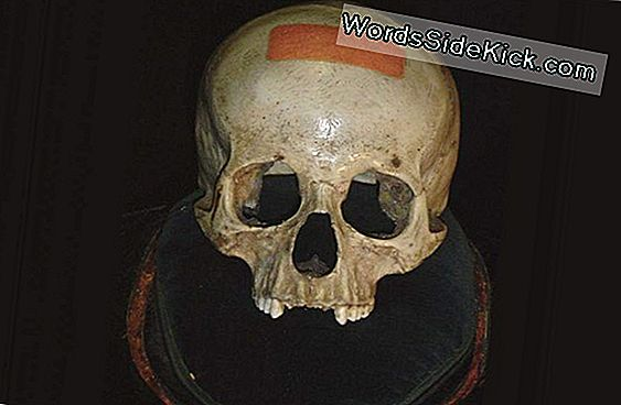 Mystery Of 'Mozart'S Skull' Still Unsolved