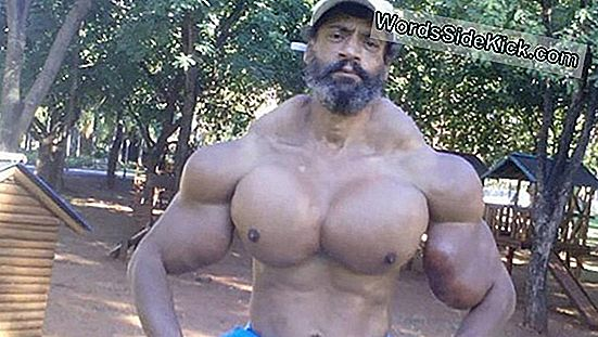 Bodybuilder Spuit Kokosolie In, Beschadigt Armspier