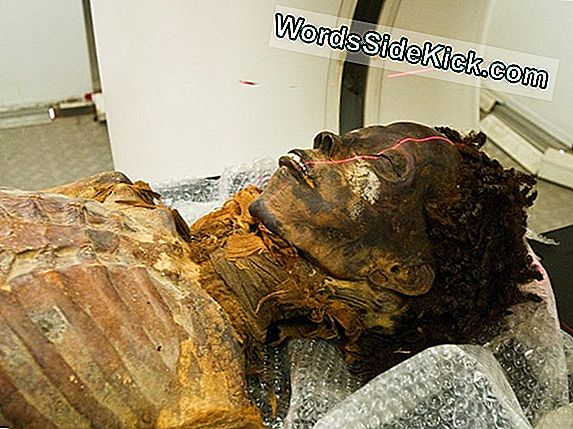 Egyptian Mummy'S Curse: Oldest Heart Disease Case