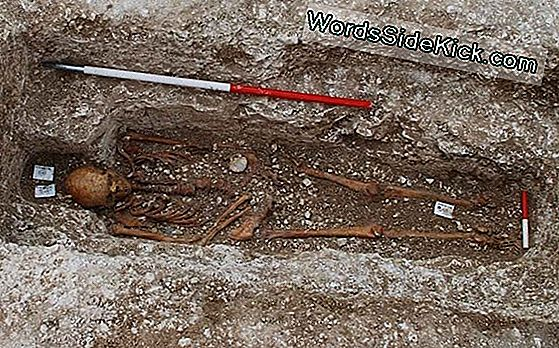 Pilgrim'S Burial: Medieval Man With Leprosy Honored At Death