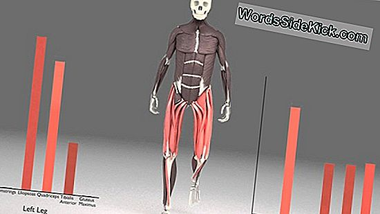 Runners 'Back Pain Starter Deep, 3D Models Show