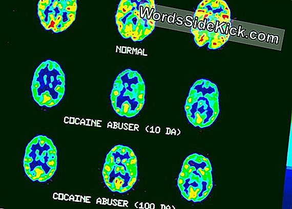 Addiction Changes Brain Biology In 3 Fasen, Zeggen Experts
