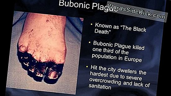 Teen Dies Of Plague: What Are The Symptoms Of The Deadly Disease?