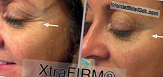 Wrinkle-Blasting Laser Treatments Soar