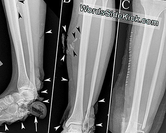Boston Marathon Bombing: X-Rays En Ct-Scans Onthullen Blessures, Lessen
